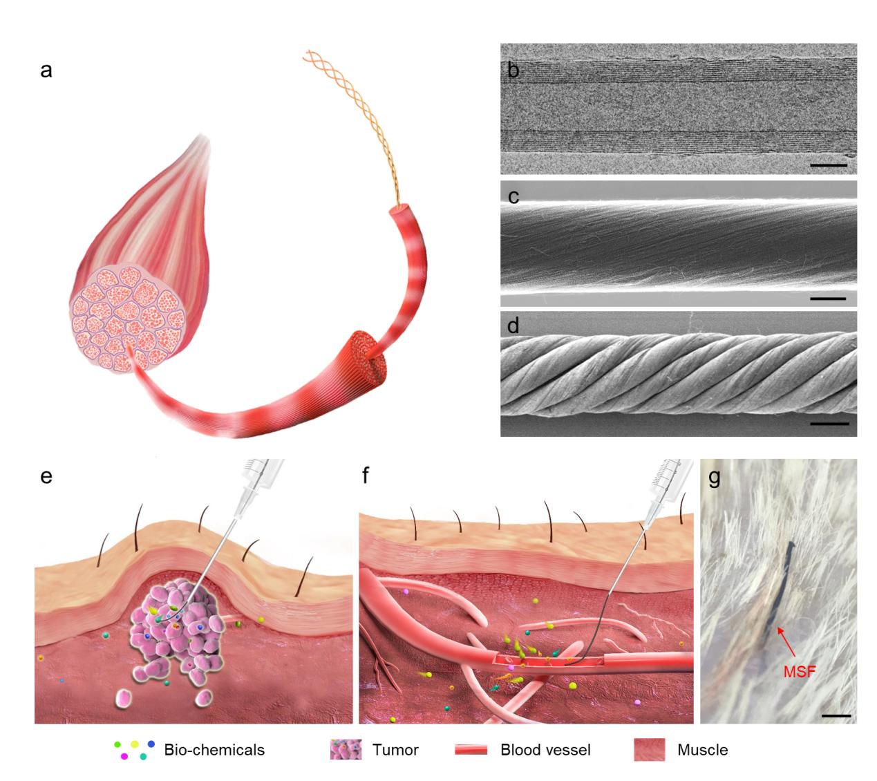 Functionalized helical fibre bundles of carbon nanotubes for